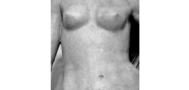 Symposium sobre Cirugía Estética Mamaria en Milán