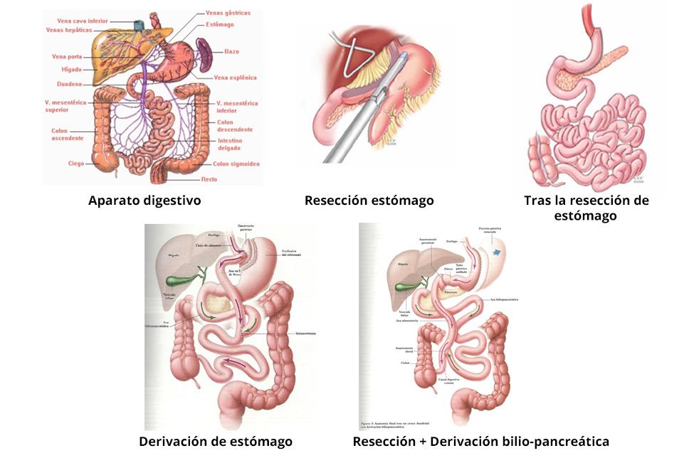 Cirugía metabólica contra la obesidad y la diabetes cirugia_obesidad_perezdelaromana