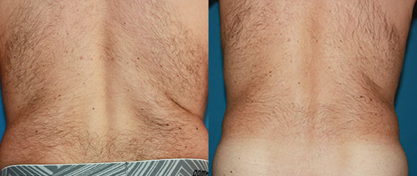 Мужская абдоминопластика Abdominoplastia-Masculina-4-Instituto-Perez-de-la-Romana-1