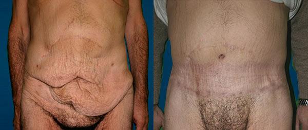 Мужская абдоминопластика Abdominoplastia-Masculina-5-Instituto-Perez-de-la-Romana-1