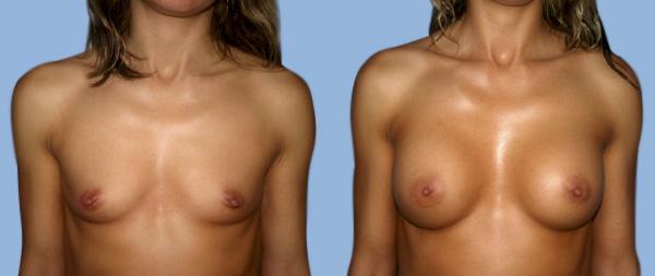 Увеличение груди Aumento-de-mamas-02-Instituto-Perez-de-la-Romana