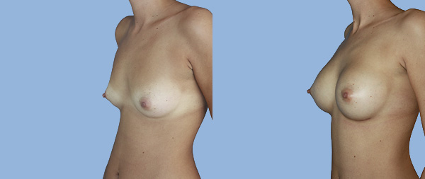 Увеличение груди Aumento-de-mamas-03-Instituto-Perez-de-la-Romana