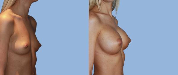 Увеличение груди Aumento-de-mamas-07-Instituto-Perez-de-la-Romana