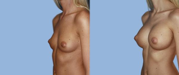 Aumento de pecho Aumento-de-mamas-09-Instituto-Perez-de-la-Romana