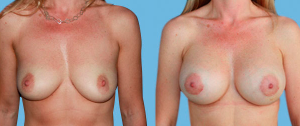 Увеличение груди Aumento-de-mamas-13-Instituto-Perez-de-la-Romana