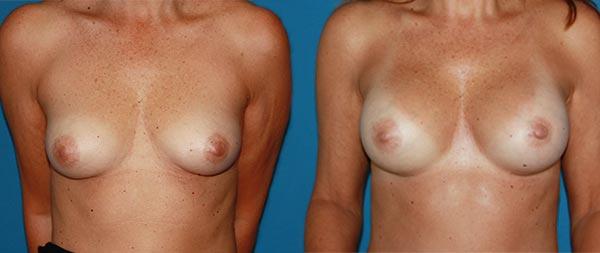Увеличение груди Aumento-de-mamas-15-Instituto-Perez-de-la-Romana