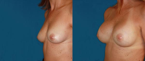 Увеличение груди Aumento-de-mamas-16-Instituto-Perez-de-la-Romana