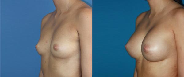 Увеличение груди Aumento-de-mamas-17-Instituto-Perez-de-la-Romana