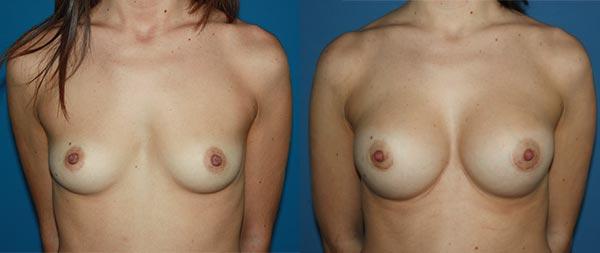 Увеличение груди Aumento-de-mamas-18-Instituto-Perez-de-la-Romana