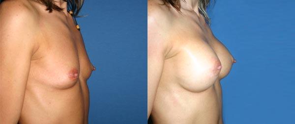 Увеличение груди Aumento-de-mamas-21-Instituto-Perez-de-la-Romana
