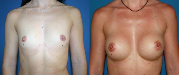 Aumento de pecho Aumento-de-mamas-22-Instituto-Perez-de-la-Romana