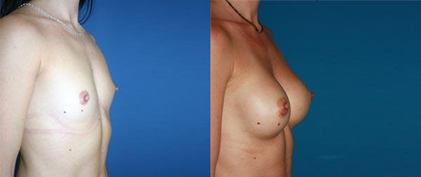 Aumento de pecho Aumento-de-mamas-23-Instituto-Perez-de-la-Romana