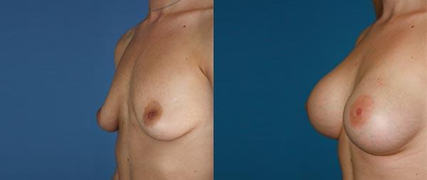 Увеличение груди Aumento-de-mamas-24-Instituto-Perez-de-la-Romana
