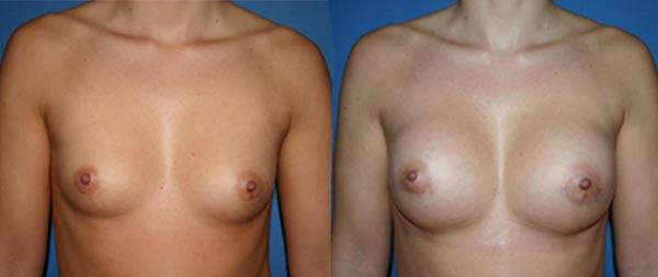 Увеличение груди Aumento-de-mamas-25-Instituto-Perez-de-la-Romana