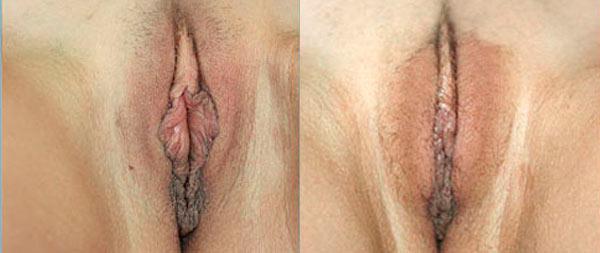 Labioplastia láser Cirugia-Intima-02-1-Instituto-Perez-de-la-Romana-1