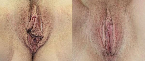 Labioplastia láser Cirugia-Intima-03-Instituto-Perez-de-la-Romana-1