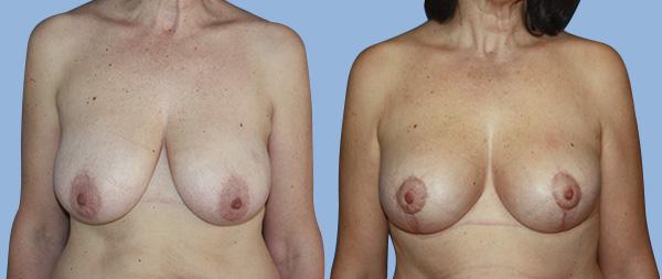Подтяжка груди (мастопексия) Elevacion-de-Mamas-01-Instituto-Perez-de-la-Romana