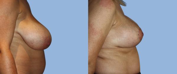 Mastopexia o elevación de pecho Elevacion-de-Mamas-03-Instituto-Perez-de-la-Romana