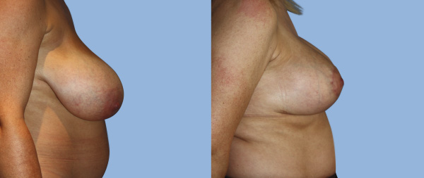 Подтяжка груди (мастопексия) Elevacion-de-Mamas-03-Instituto-Perez-de-la-Romana
