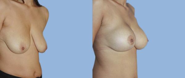 Mastopexia o elevación de pecho Elevacion-de-Mamas-04-Instituto-Perez-de-la-Romana