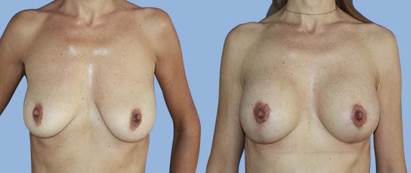 Подтяжка груди (мастопексия) Elevacion-de-Mamas-06-Instituto-Perez-de-la-Romana