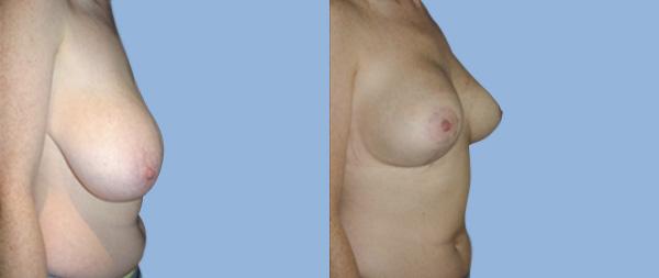 Подтяжка груди (мастопексия) Elevacion-de-Mamas-07-Instituto-Perez-de-la-Romana