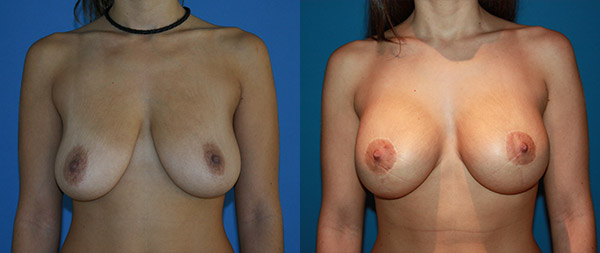 Подтяжка груди (мастопексия) Elevacion-de-Mamas-08-Instituto-Perez-de-la-Romana