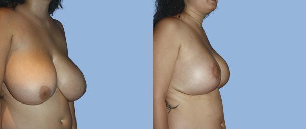 Подтяжка груди (мастопексия) Elevacion-de-Mamas-12-Instituto-Perez-de-la-Romana