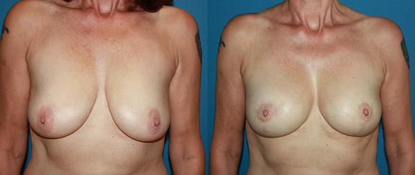 Подтяжка груди (мастопексия) Elevacion-de-Mamas-13-Instituto-Perez-de-la-Romana