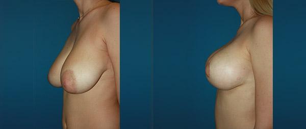 Mastopexia o elevación de pecho Elevacion-de-Mamas-14-Instituto-Perez-de-la-Romana
