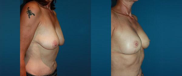 Подтяжка груди (мастопексия) Elevacion-de-Mamas-16-Instituto-Perez-de-la-Romana