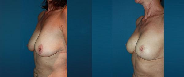Mastopexia o elevación de pecho Elevacion-de-Mamas-17-Instituto-Perez-de-la-Romana