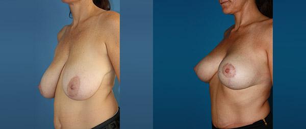 Подтяжка груди (мастопексия) Elevacion-de-Mamas-18-Instituto-Perez-de-la-Romana