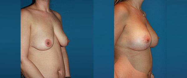Подтяжка груди (мастопексия) Elevacion-de-Mamas-21-Instituto-Perez-de-la-Romana