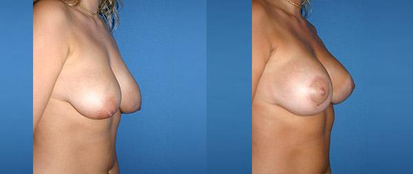 Подтяжка груди (мастопексия) Elevacion-de-Mamas-22-Instituto-Perez-de-la-Romana