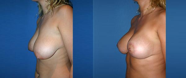 Подтяжка груди (мастопексия) Elevacion-de-Mamas-23-Instituto-Perez-de-la-Romana