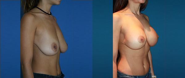 Подтяжка груди (мастопексия) Elevacion-de-Mamas-24-Instituto-Perez-de-la-Romana