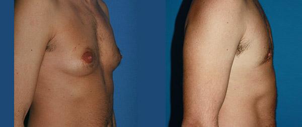 Male gynecomastia Ginecomastia-1-1-1