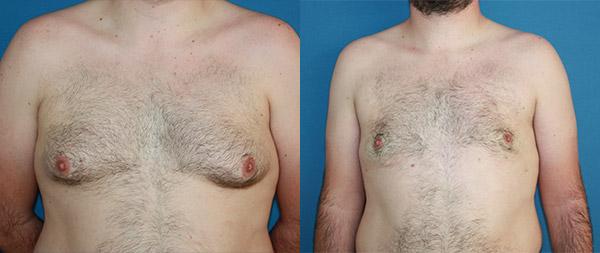 Male gynecomastia Ginecomastia-10-1