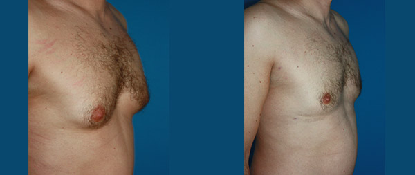 Male gynecomastia Ginecomastia-11-1