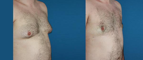Male gynecomastia Ginecomastia-12-1