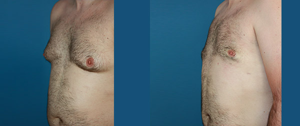 Male gynecomastia Ginecomastia-13-1