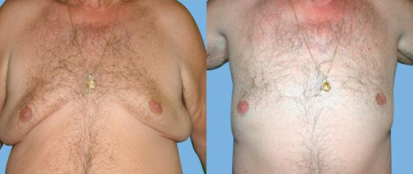 Male gynecomastia Ginecomastia-14-1