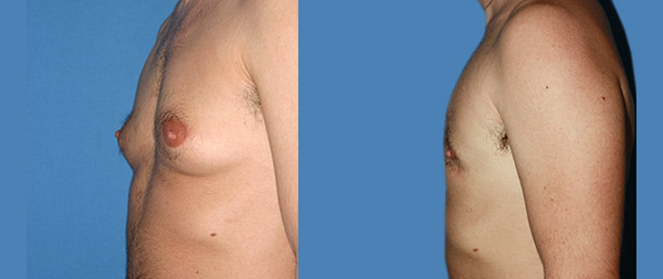 Ginecomastia masculina Ginecomastia-2-1