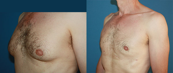 Ginecomastia masculina Ginecomastia-3-1