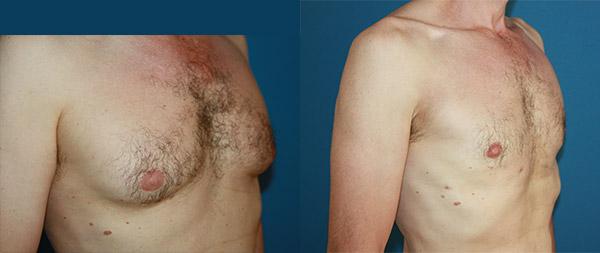 Male gynecomastia Ginecomastia-4-1