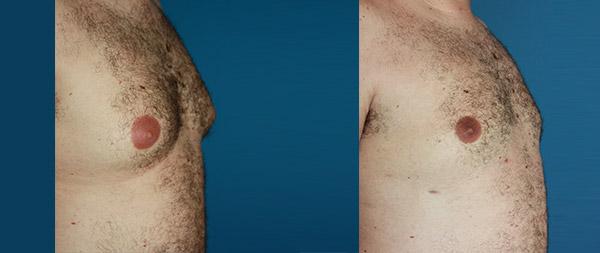 Ginecomastia masculina Ginecomastia-5-1