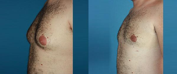 Male gynecomastia Ginecomastia-6-1