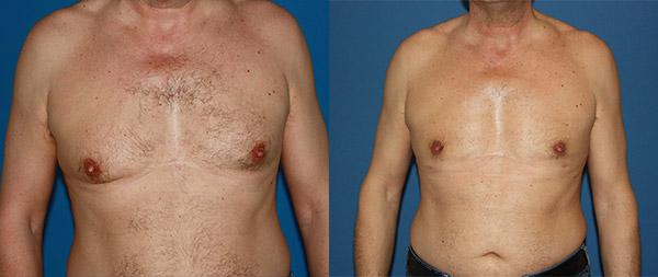 Ginecomastia masculina Ginecomastia-7-1