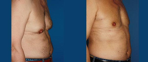 Male gynecomastia Ginecomastia-8-1